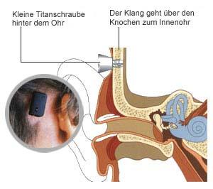 fagnoul-implantat.jpg